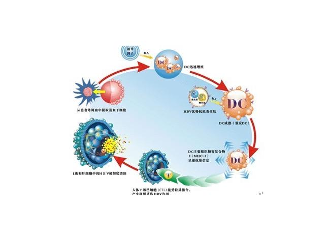 免疫细胞治疗技术,是把病人体内的免疫细胞放在体外特定的条件下进行培养,使他的数量和功能都增加,我们把培养好的细胞回输到病人体内,能够定向到肝脏里面杀死病毒细胞。目前在接受免疫细胞治疗乙肝的患者中已经有35%实现了乙肝表面抗原转阴,恢复了健康,而韩忠海就是其中一位普普通通的患者,如今他过上了正常人的生活。